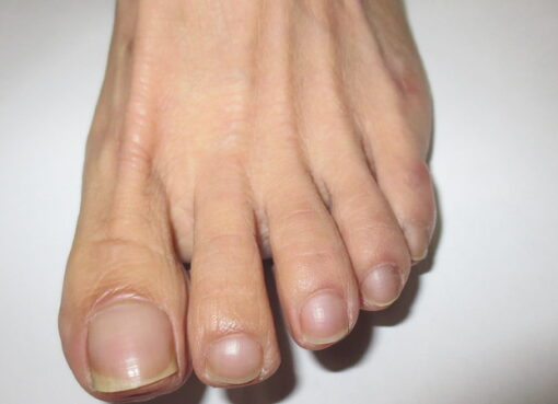 Diagnosis of internal health of nails and foot shapes (part2)