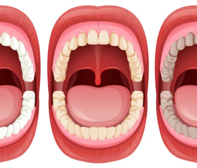 Everything about Uvula