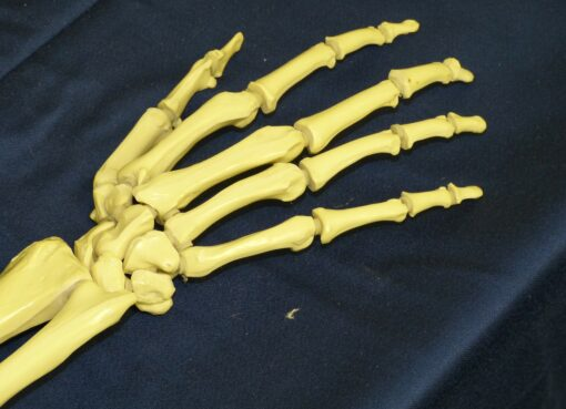Finger bone fractures (part3)