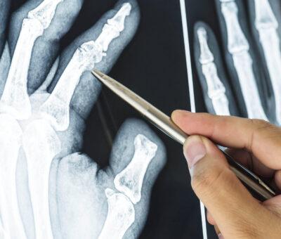 Finger bone fractures
