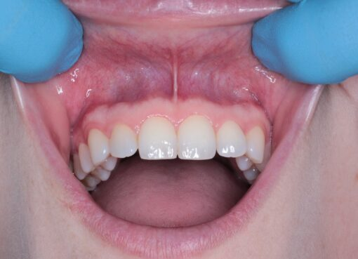 Severe association of oral disease with death because of corona