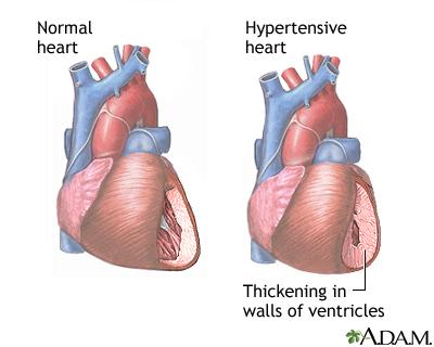 Hypertensive heart disease or high blood pressure