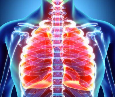 Collapsed lung (pneumothorax)