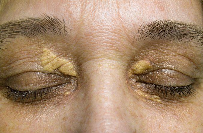 Xanthelasma, causes, diagnosis, and treatments