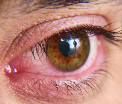 Dry eye epidemic