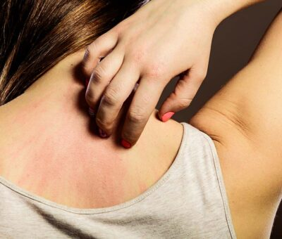 How to remedy your itchy skin?