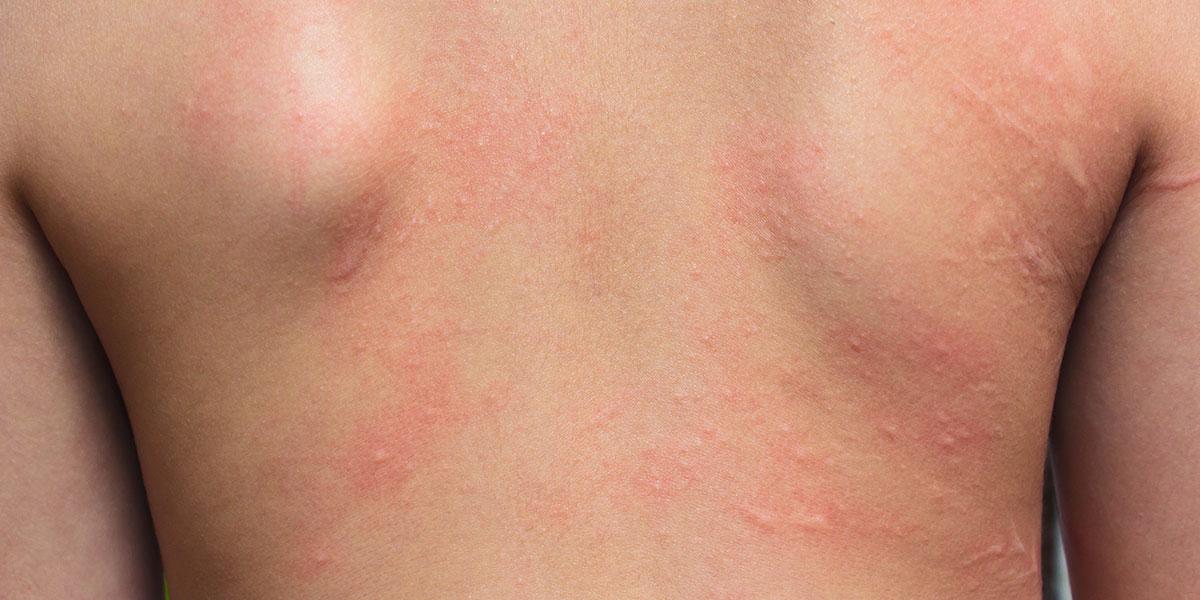 What causes an armpit rash?