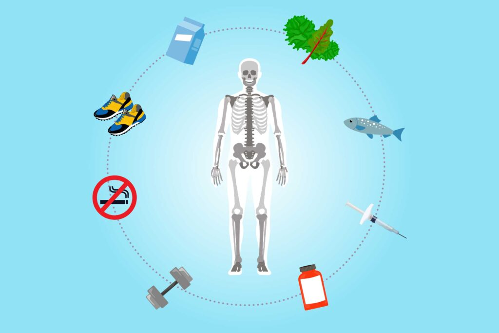 How to avoid from Osteoporosis