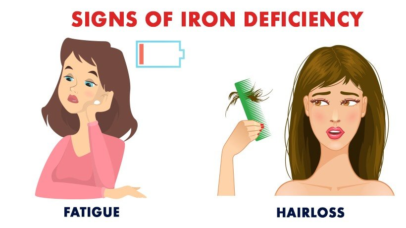 What are signs of IRON deficiency?