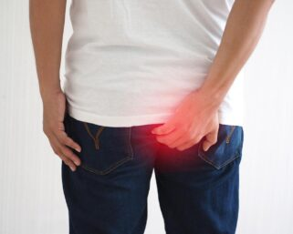 Everything you need to know about hemorrhoids